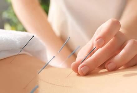 De ce este important un tratament acupunctură și ce ar trebui să știm despre această practică străveche ?