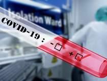Testele rapide antigen SARS...