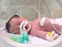 Minune in Gaza: un copil a...