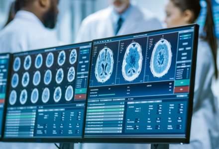 O rețea de sănătate privată a investit peste 600.000 euro în echipamente pentru neurochirugie