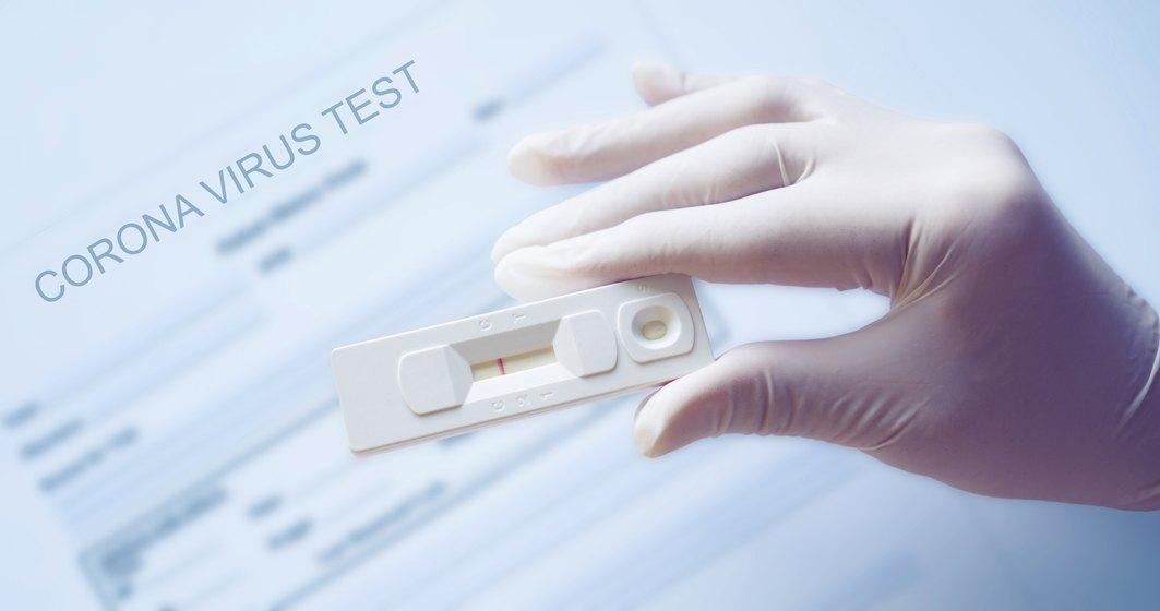 Italia va produce un nou test pentru COVID-19, cu rezultat în 3 minute