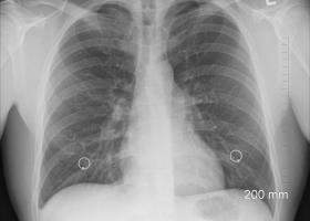 Start-up-ul românesc care ajută la interpretarea radiografiilor prin...