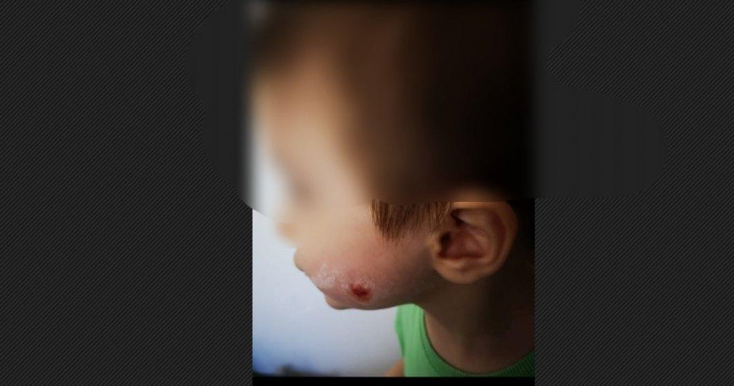 Gradinita privata in care copiii sunt muscati, managementul ameninta si ignora